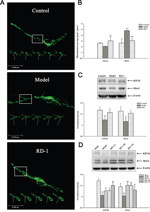 Effects of RD-1 on the impaired axonal mitochondrial transport.