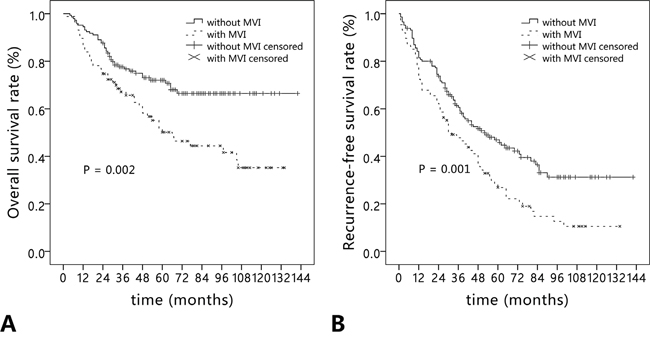 Long-term outcomes in hepatocellular carcinoma patients with (n = 87) and without microvascular invasion (n = 146).