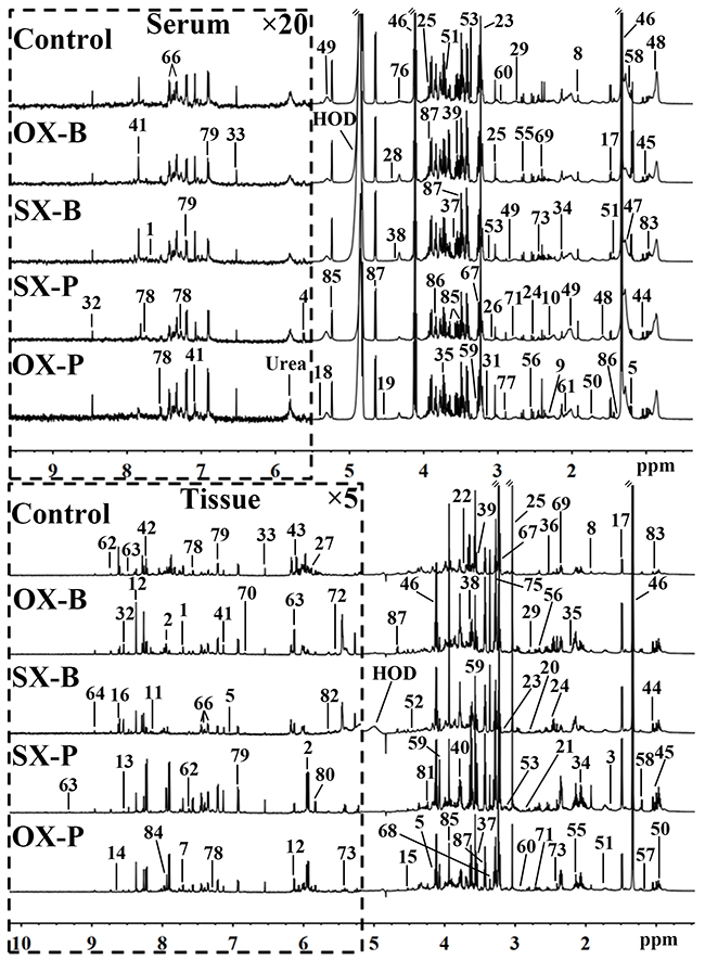 Representative 600 MHz 1H NMR spectra of the serum (top panel) and tissue (bottom panel) samples from control, orthotopic and subcutaneous xenograft (OX and SX) mouse models induced by Panc-1 (-P) and BxPC-3 (-B) cell strains.