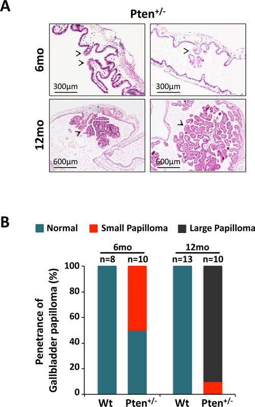 Haploinsufficient tumor suppressive function of
