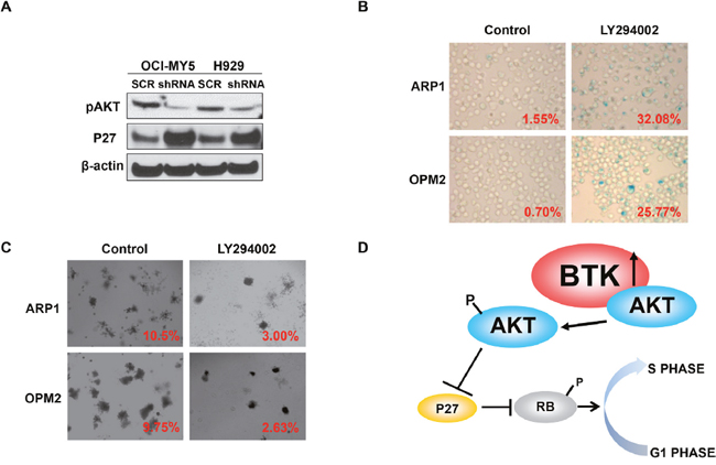 BTK activates AKT and blocks RB activity in MM cells.