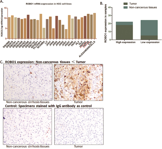 ROBO1 expression in HCC cell lines and real patients' specimens.