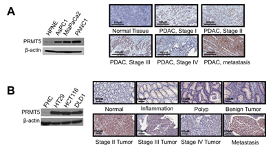 PRMT5 is overexpressed in pancreatic and colorectal cancer.
