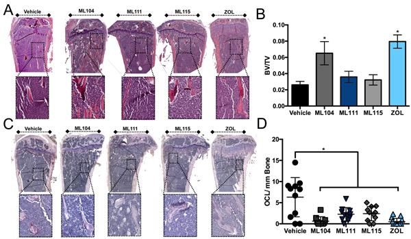 The BMMPI, ML104, protects against 5TGM1 induced bone loss.