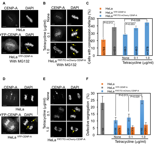 CENP-A overexpression contributes to chromosome congression and segregation defects in human cells.