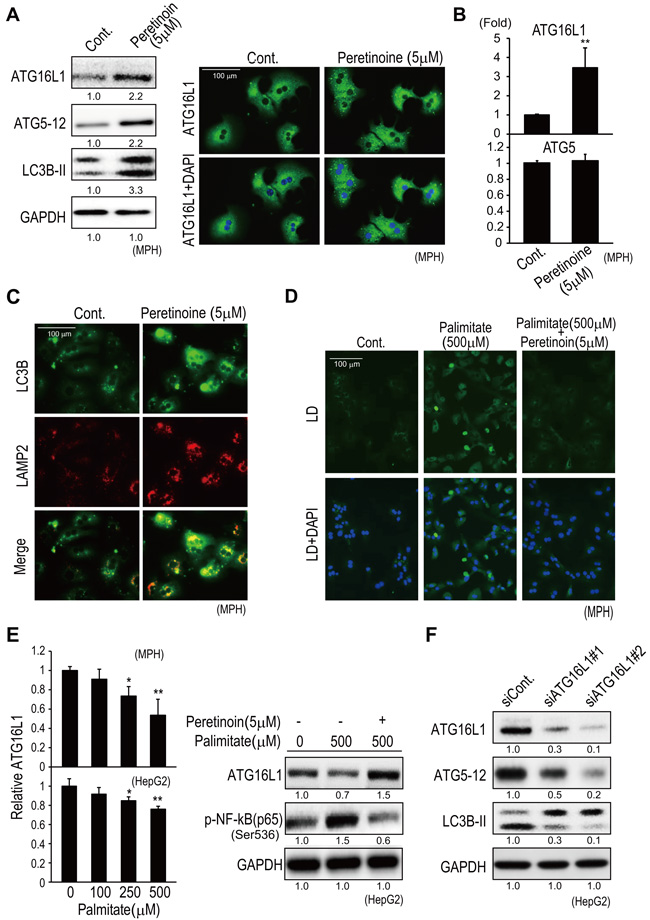 Peretinoin increases Atg16L1 expression and activates autophagy in MPH.