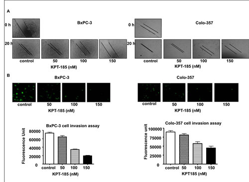 KPT-185 inhibits PC cell migration and invasion.