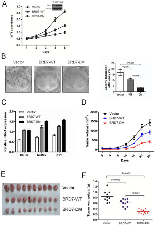 Fig 4: The degradation of BRD7 by APC/C E3 ligase plays key roles in cell growth and the tumorigenesis of osteosarcoma.