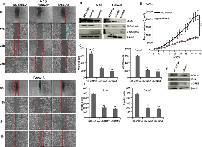 AKAP4 knockdown inhibits wound healing ability and cellular motility marker in A10 and Caov-3 cells and reduces tumor growth in SCID mice model.
