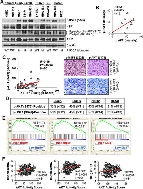 HSF1 and AKT are co-activated in multiple breast cancer subtypes.