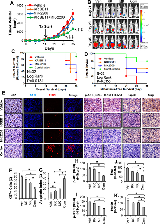 Combination of HSF1 and AKT inhibition reduces growth and metastasis of triple-negative breast cancer in vivo.