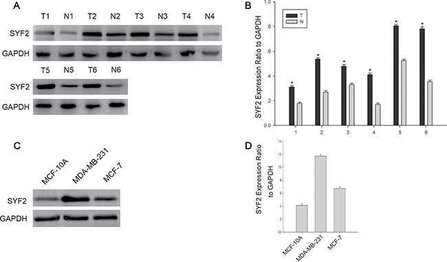 The expression of SYF2 in bresat cancer tissues and cells.