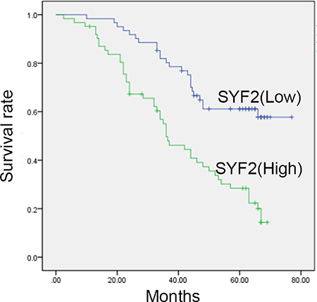Kaplan-Meier survival analysis for high SYF2 expression versus low SYF2 expression in 123 patients of BC.