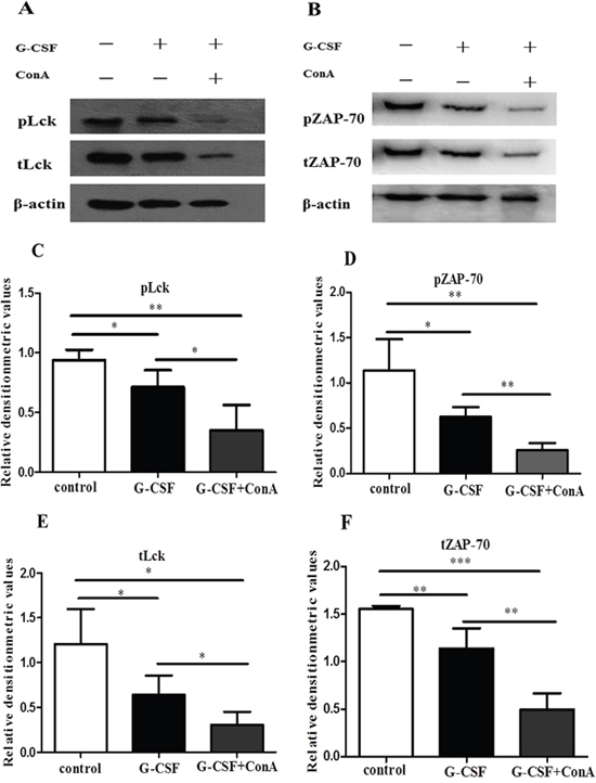 G-CSF stimulation suppressed the expression of Lck and ZAP-70 in vitro.