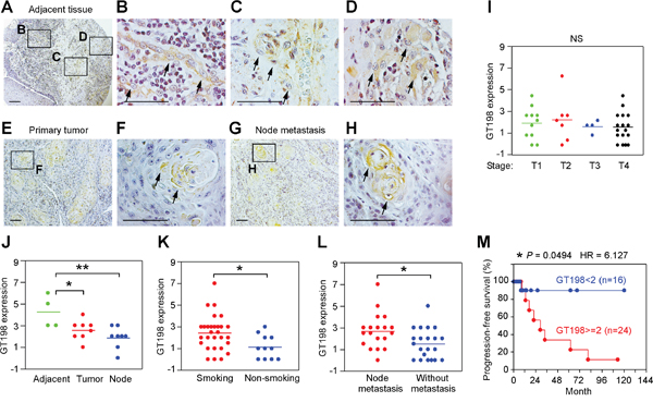 GT198+ pericytes give rise to tumor cells in human oral cancer.