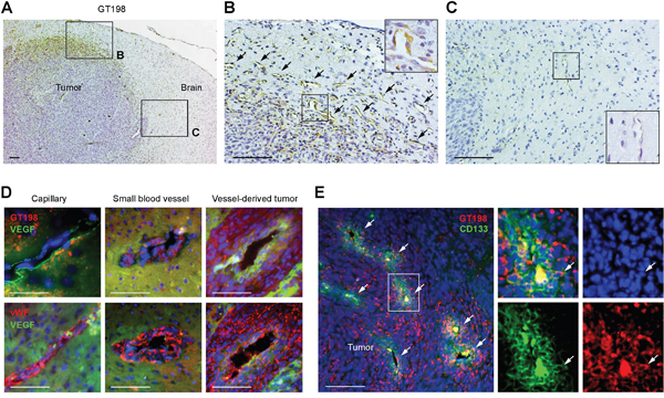GT198+ pericytes give rise to tumor cells in U-251 glioblastoma xenografts.