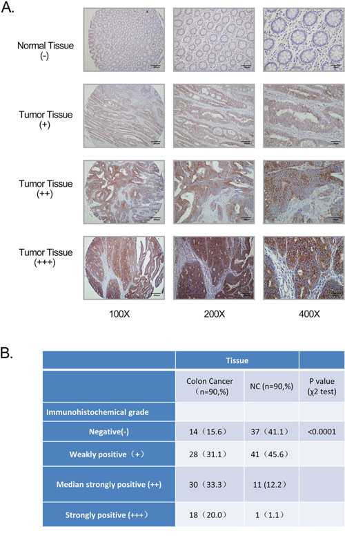 GPR116 expression in colon cancer tissue samples.