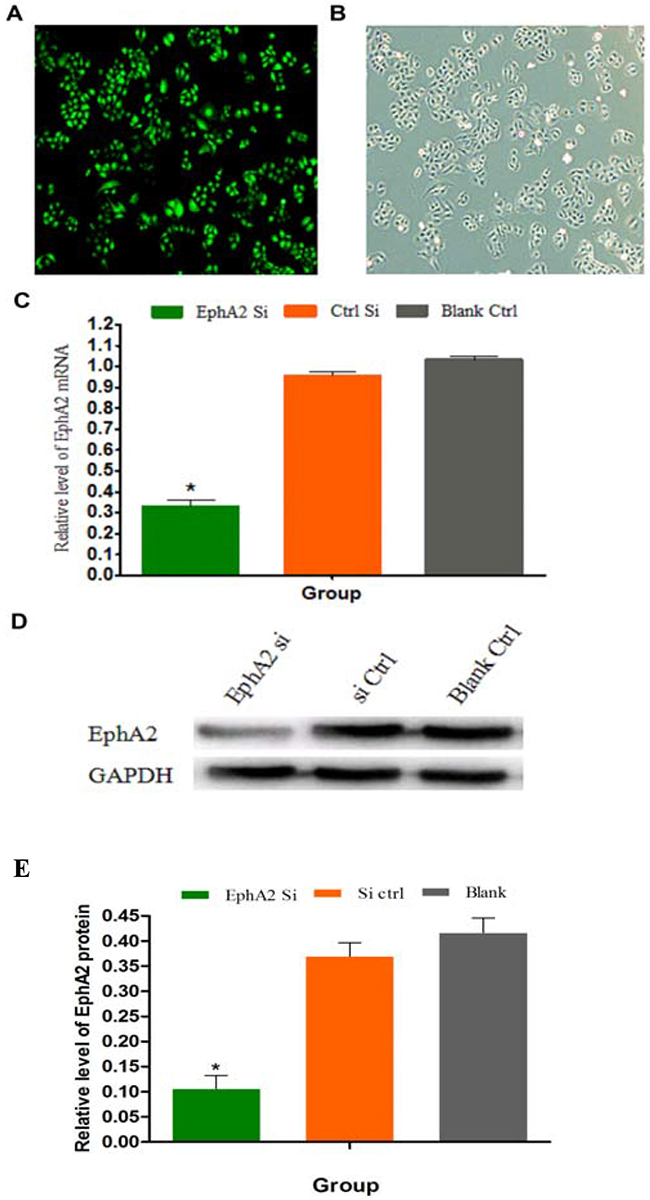 SGC-7901/L-OHP cells transfected with EphA2 siRNA; EphA2 mRNA and protein expression in the SGC-7901/L-OHP cells was silenced.