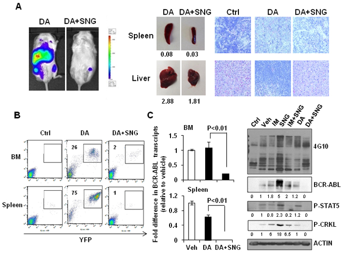 Combination treatment of SNG1153 with DA significantly reduced leukemic cell infiltration in mouse hematopoietic tissues.