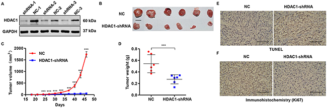 Knockdown of HDAC1 in glioma cells reduces tumor growth in vivo.