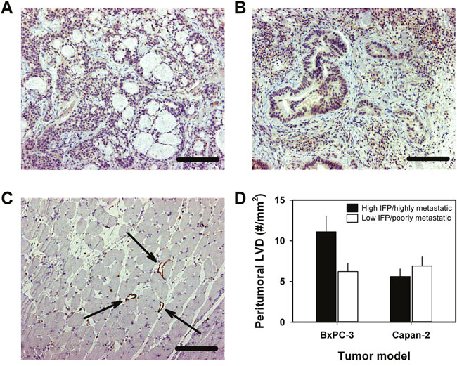Lymphatics associated with BxPC-3 and Capan-2 PDAC xenografts.
