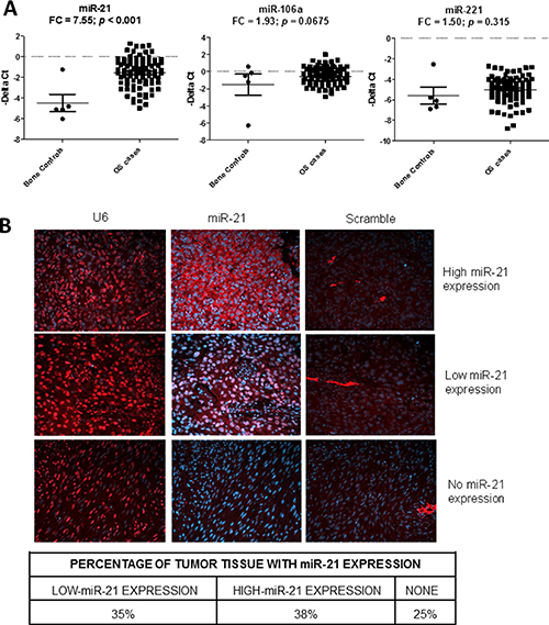 Detection of the miR-21, miR-106a and miR-221 in osteosarcoma (OS) tissues.