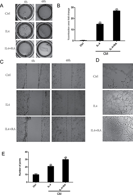 RA enhanced macrophage-dependent stromal cell activation and angiogenesis.