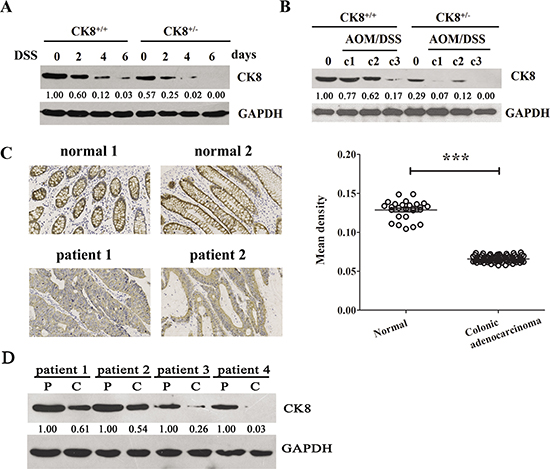 CK8 is down regulated in colitis and colitis-associated colorectal cancer.