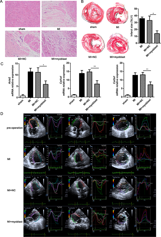 Myoblast transplantation improves cardiac function post-MI.