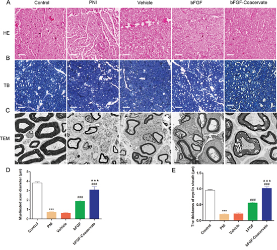 Histological investigation and morphometric analysis at 30 days after crush injury.