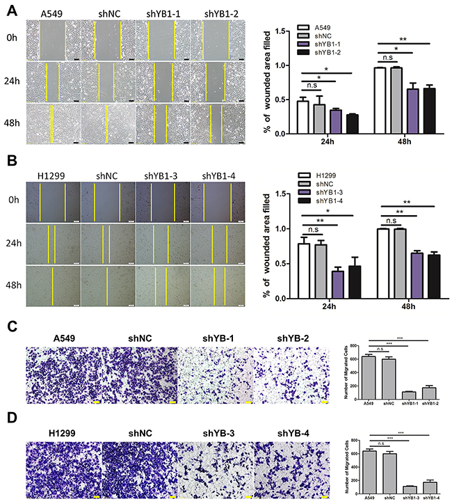 Inhibition of YB-1suppresses migration of lung adenocarcinoma cells.