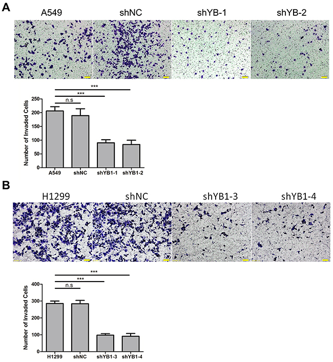 Inhibition of YB-1 suppresses invasion of lung adenocarcinoma cells.