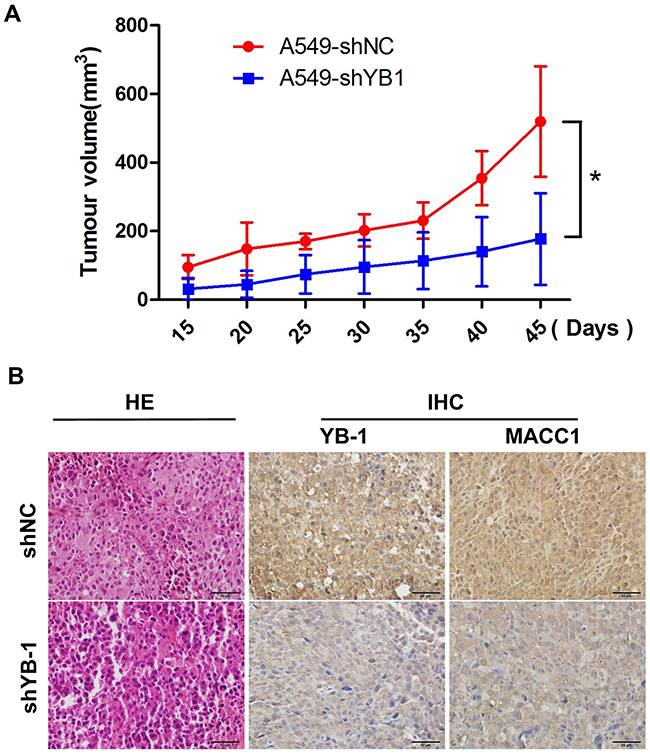 Inhibition of YB-1 suppresses tumor growth in a lung adenocarcinoma xenograft mice model in vivo.