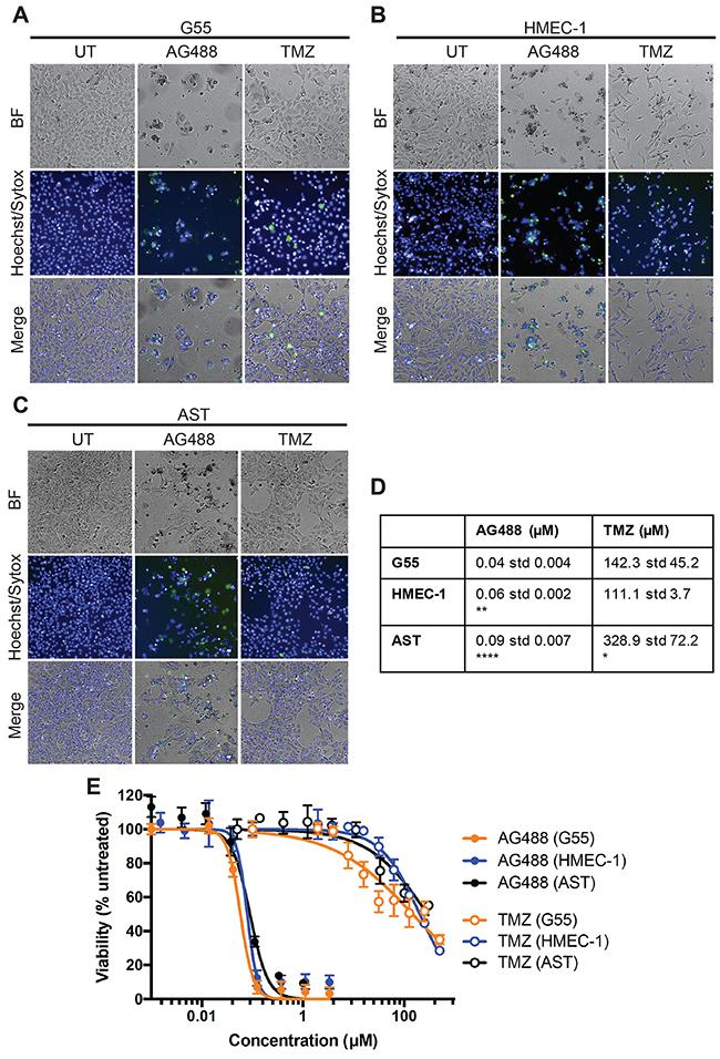 AG488 decreased G55 cell viability.