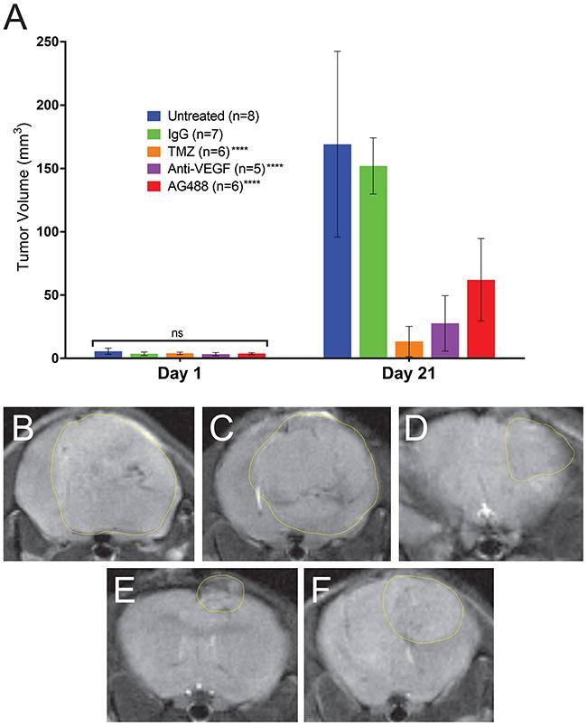 AG488 therapy decreases tumor volumes in G55 gliomas.