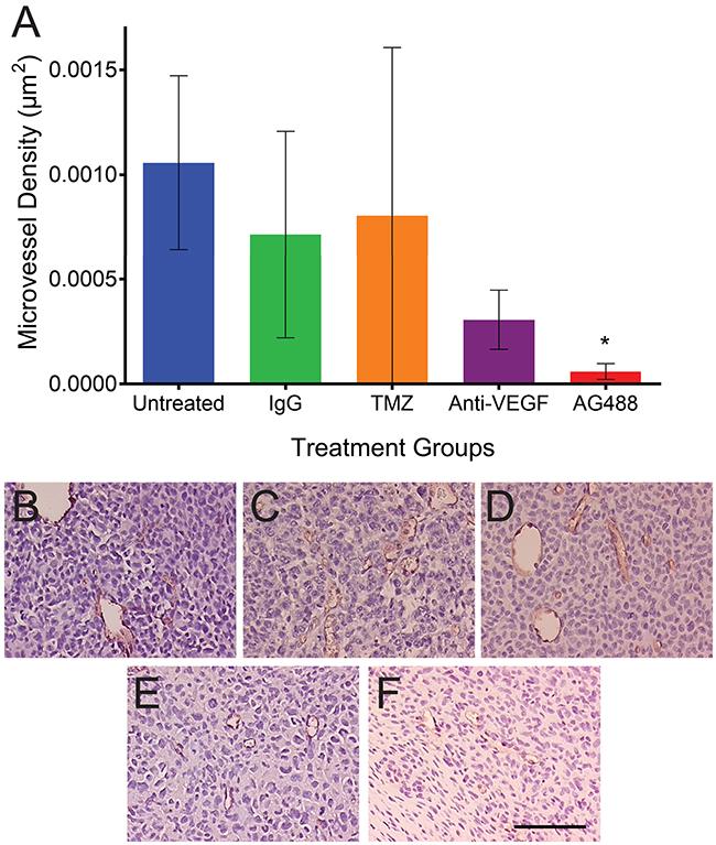 AG488 therapy decreases microvessel density in G55 gliomas.