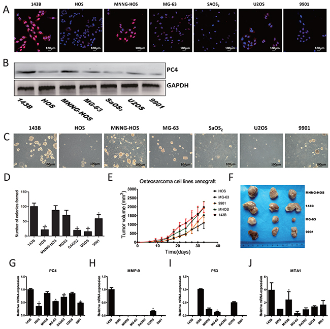 Expression of PC4 in osteosarcoma cells and malignant phenotype of different osteosarcoma cell lines.