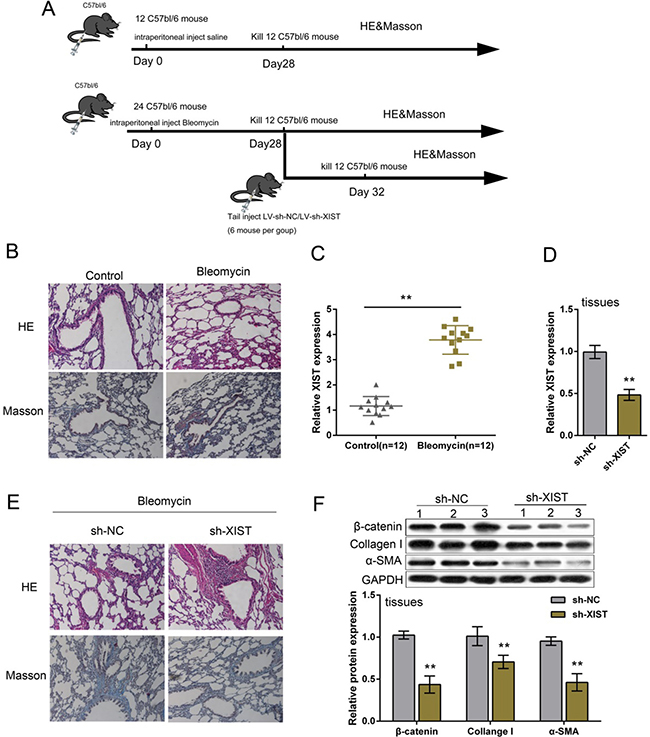Expression and function of XIST in BLM-induced mouse model of PF.