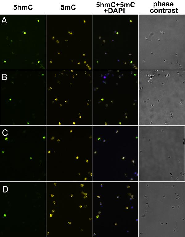 5-hydroxymethylcytosine (5hmC) and 5-methylcytosine (5mC) patterns in human ejaculated spermatozoa.