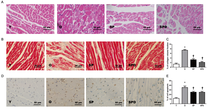 Myocardial histology and morphology in young (Y), old (O), spermine (SP)-, and spermidine (SPD)-treated rats.