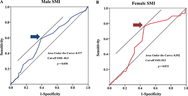 Receiver operating characteristic (ROC) curve of low muscle mass for both sexes.