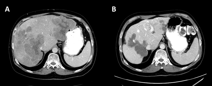 Abdominal CT with contrast (