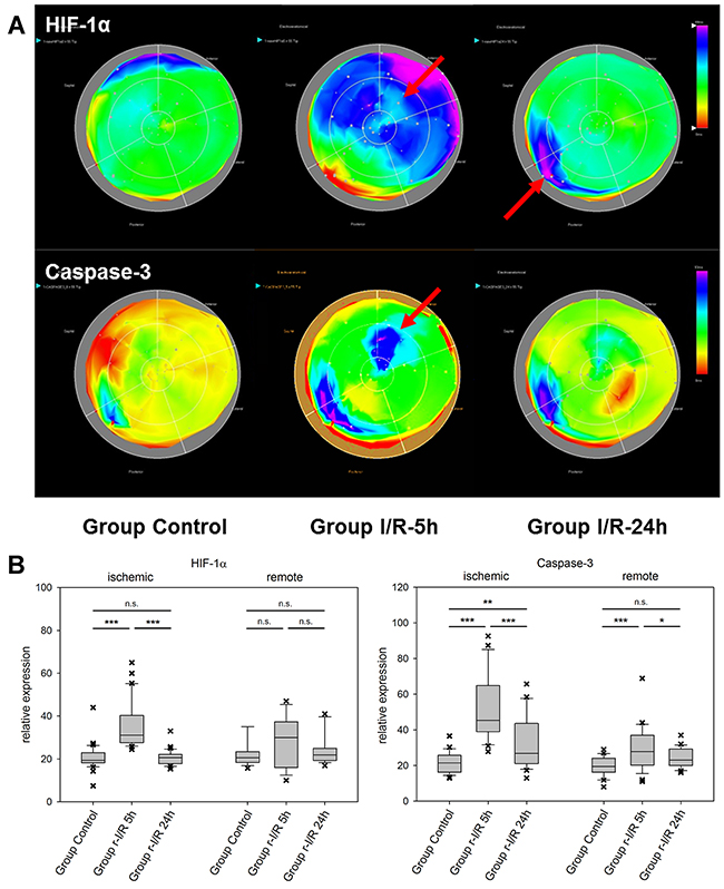 Spatiotemporal 2D bulls-eye display of HIF-1α, and caspase-3 gene expression of the entire left ventricle after repetitive ischemia/reperfusion (r-I/R).