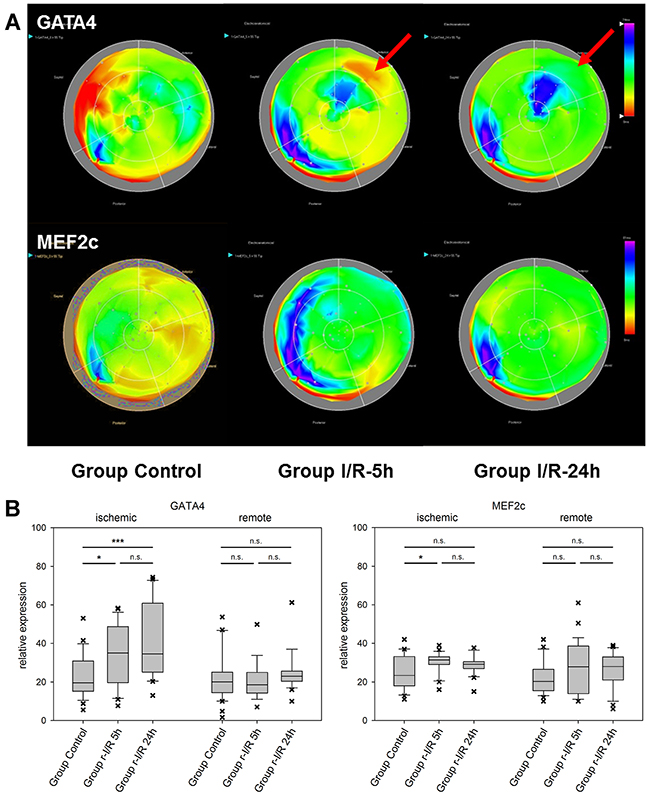 Spatiotemporal 2D bulls-eye display of GATA4 and myocyte enhancer factor 2C (MEF2c) gene expression of the entire left ventricle after repetitive ischemia/reperfusion (r-I/R).