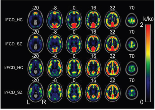 Spatial distributions of the average rescaled lFCD and lrFCD hubs in healthy control individuals and schizophrenia patients.