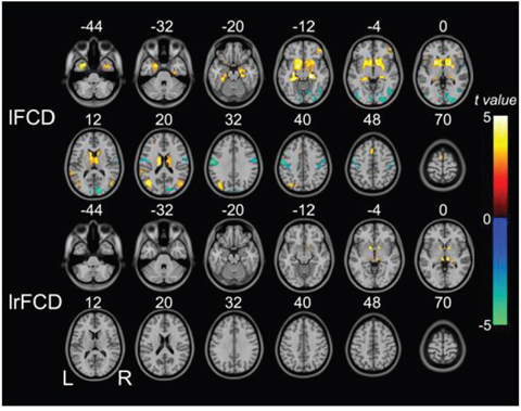Brain regions in which lFCD and lrFCD differed significantly between schizophrenia patients and healthy controls.