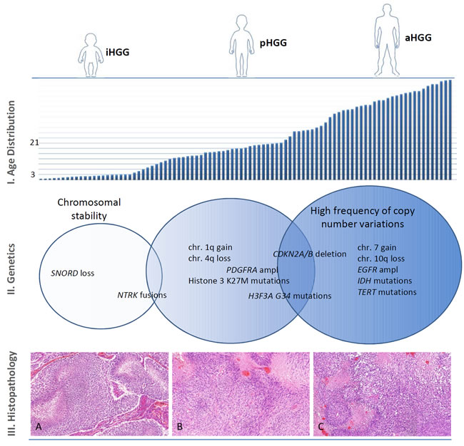 Age distribution, genetic abnormalities and histopathological findings of HGG.