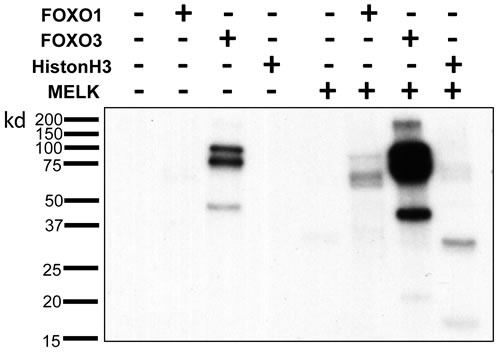 Direct FOXO1 and FOXO3 phosphorylation by MELK.