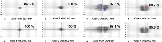 2D global gamma analyses for the four failed stereotactic ablative radiotherapy plans delivered with volumetric modulated arc therapy technioque.