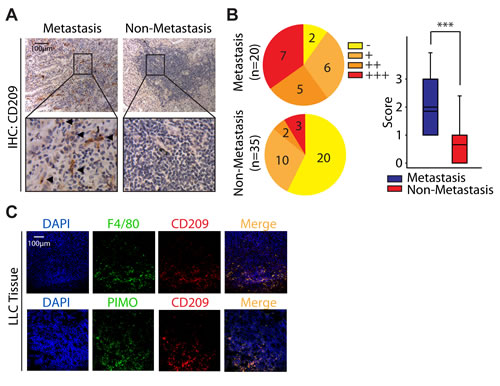 High density of M2 macrophages is associated with metastasis in adenocarcinoma NSCLC.